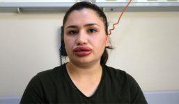 Merve hemşire uzun süre aynı dudakla kalabilir